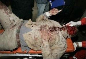 korban-pembantaian-di-gaza-palestina